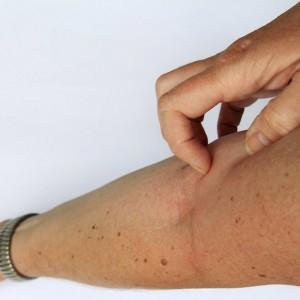 berufsunfaehigkeitsversicherung-neurodermitis